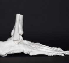 Spentys Implements 3D Technologies for the Medical Field